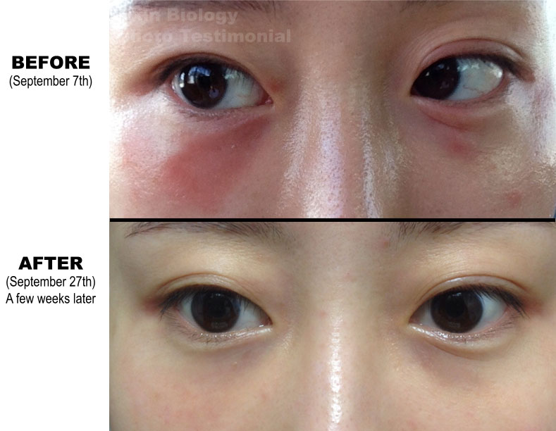 Best Natural Eye Creams Wrinkles
