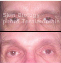 Photos skin biology copper peptide serums and copper peptide creams