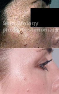 Before And After Photos Copper Peptide Reviews Crepey Skin Cream With Copper To Firm Sagging